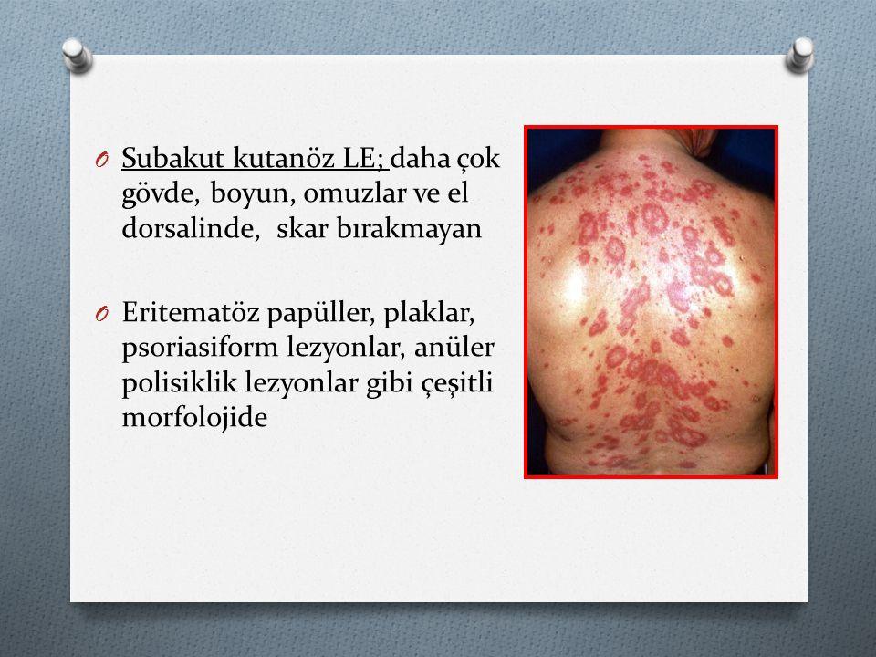 O Subakut kutanöz LE; daha çok gövde, boyun, omuzlar ve el dorsalinde, skar bırakmayan O Eritematöz papüller, plaklar, psoriasiform lezyonlar, anüler polisiklik lezyonlar gibi çeşitli morfolojide