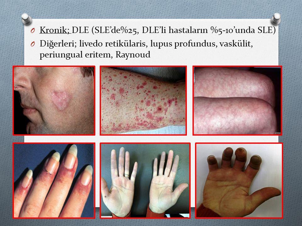 O Kronik; DLE (SLE'de%25, DLE'li hastaların %5-10'unda SLE) O Diğerleri; livedo retikülaris, lupus profundus, vaskülit, periungual eritem, Raynoud