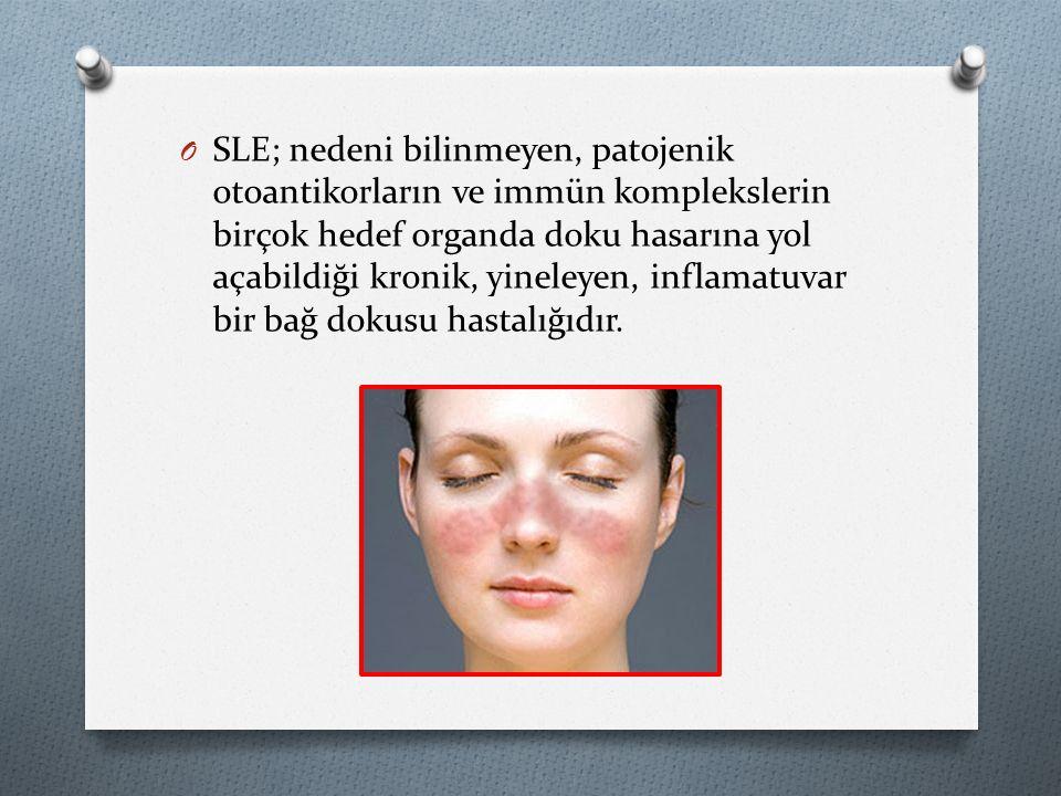 O SLE; nedeni bilinmeyen, patojenik otoantikorların ve immün komplekslerin birçok hedef organda doku hasarına yol açabildiği kronik, yineleyen, inflamatuvar bir bağ dokusu hastalığıdır.