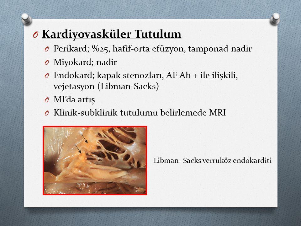 O Kardiyovasküler Tutulum O Perikard; %25, hafif-orta efüzyon, tamponad nadir O Miyokard; nadir O Endokard; kapak stenozları, AF Ab + ile ilişkili, vejetasyon (Libman-Sacks) O MI'da artış O Klinik-subklinik tutulumu belirlemede MRI Libman- Sacks verruköz endokarditi
