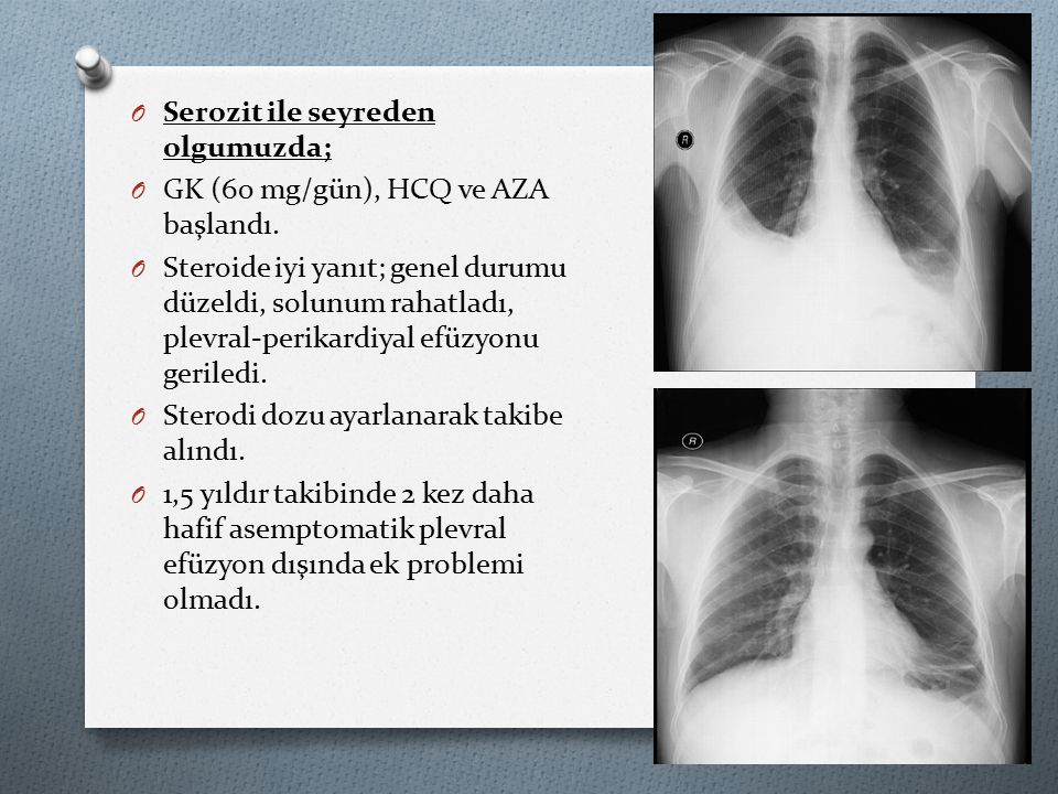 O Serozit ile seyreden olgumuzda; O GK (60 mg/gün), HCQ ve AZA başlandı.