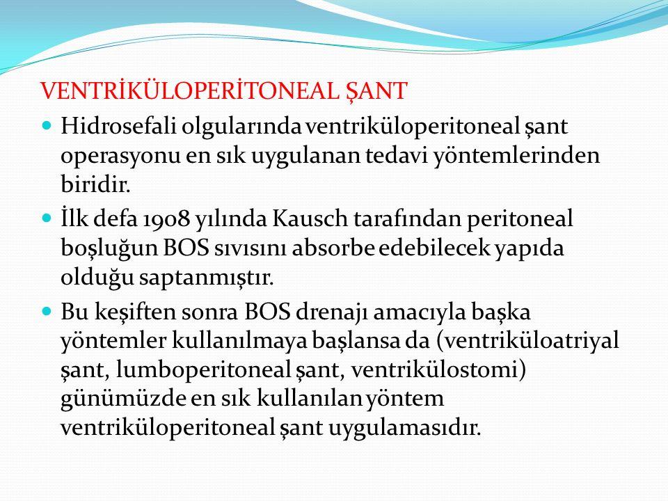VENTRİKÜLOPERİTONEAL ŞANT Hidrosefali olgularında ventriküloperitoneal şant operasyonu en sık uygulanan tedavi yöntemlerinden biridir.