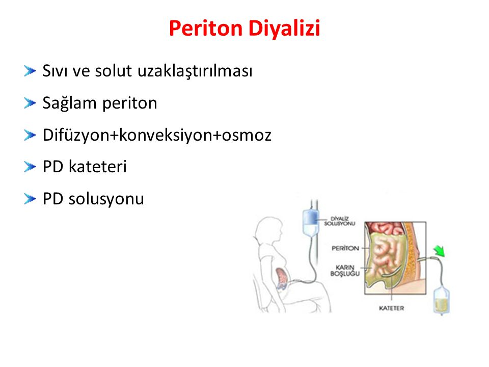 Sıvı ve solut uzaklaştırılması Sağlam periton Difüzyon+konveksiyon+osmoz PD kateteri PD solusyonu Periton Diyalizi