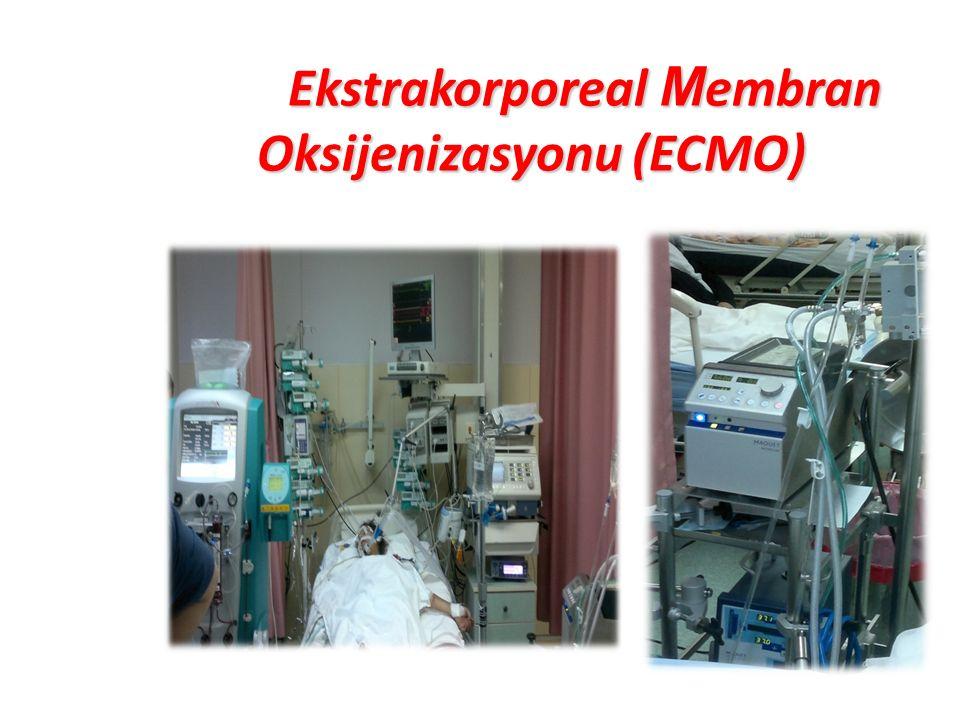 Ekstrakorporeal M embran Oksijenizasyonu (ECMO) Ekstrakorporeal M embran Oksijenizasyonu (ECMO)
