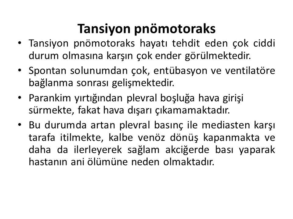Tansiyon pnömotoraks Tansiyon pnömotoraks hayatı tehdit eden çok ciddi durum olmasına karşın çok ender görülmektedir.