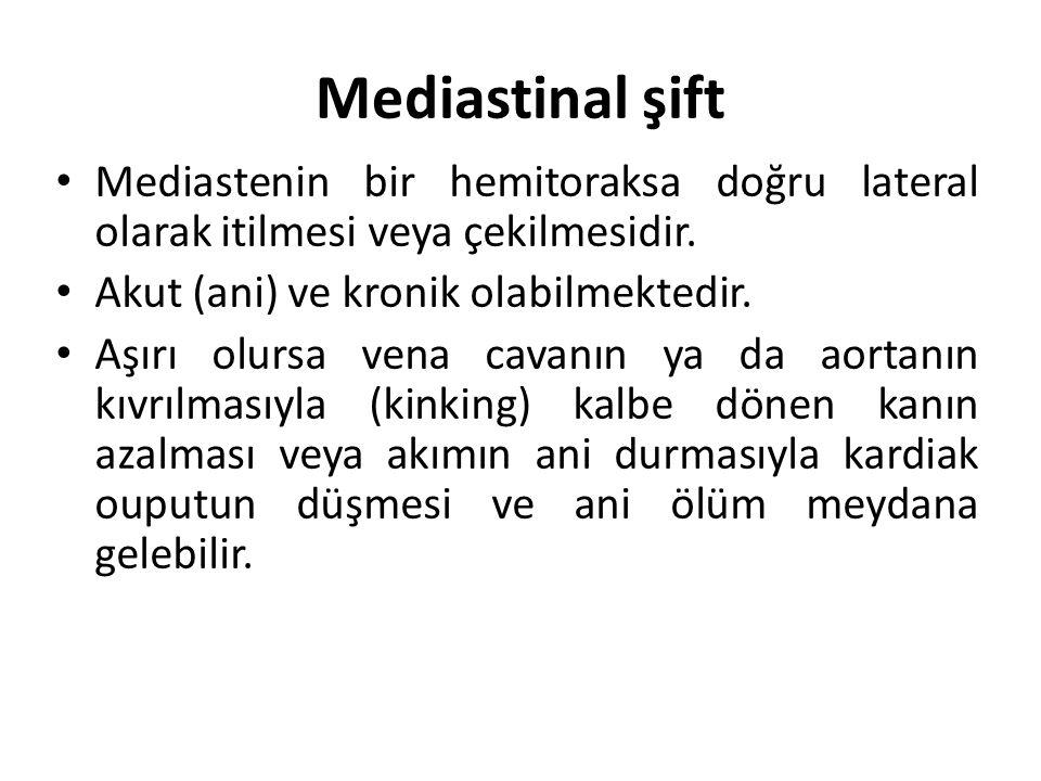 Mediastinal şift Mediastenin bir hemitoraksa doğru lateral olarak itilmesi veya çekilmesidir.