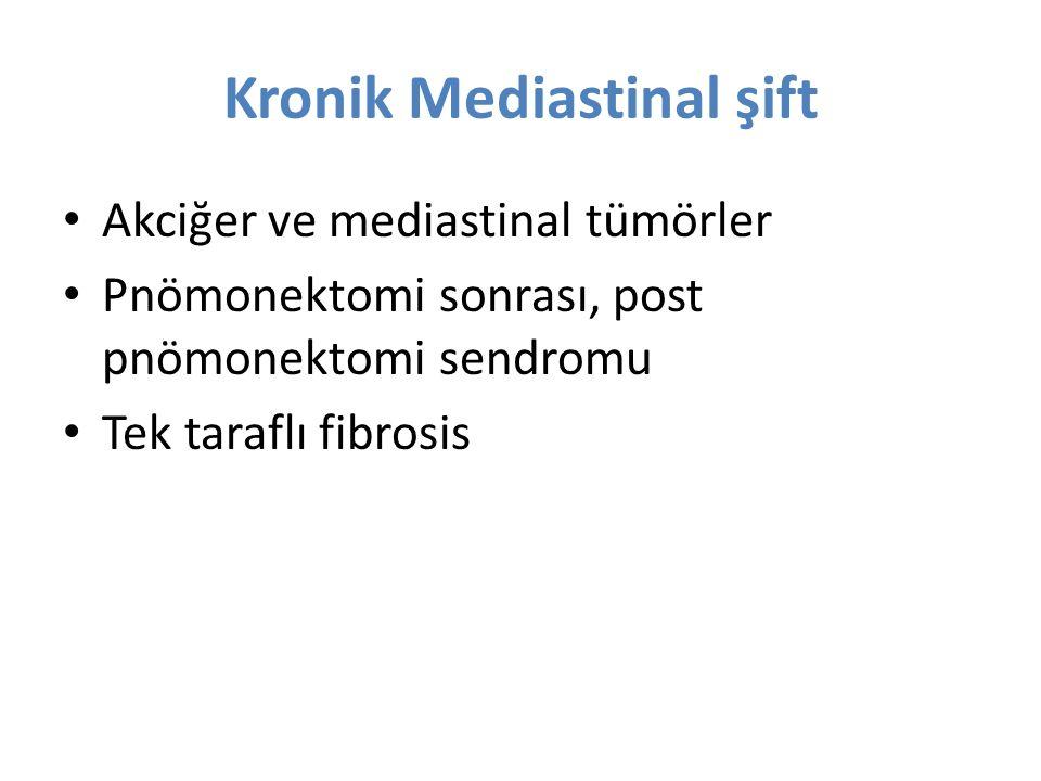 Kronik Mediastinal şift Akciğer ve mediastinal tümörler Pnömonektomi sonrası, post pnömonektomi sendromu Tek taraflı fibrosis