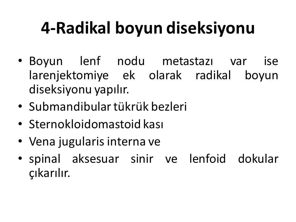 4-Radikal boyun diseksiyonu Boyun lenf nodu metastazı var ise larenjektomiye ek olarak radikal boyun diseksiyonu yapılır.