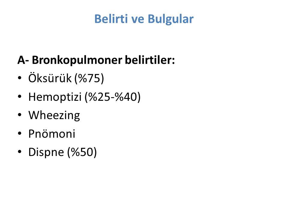 Belirti ve Bulgular A- Bronkopulmoner belirtiler: Öksürük (%75) Hemoptizi (%25-%40) Wheezing Pnömoni Dispne (%50)