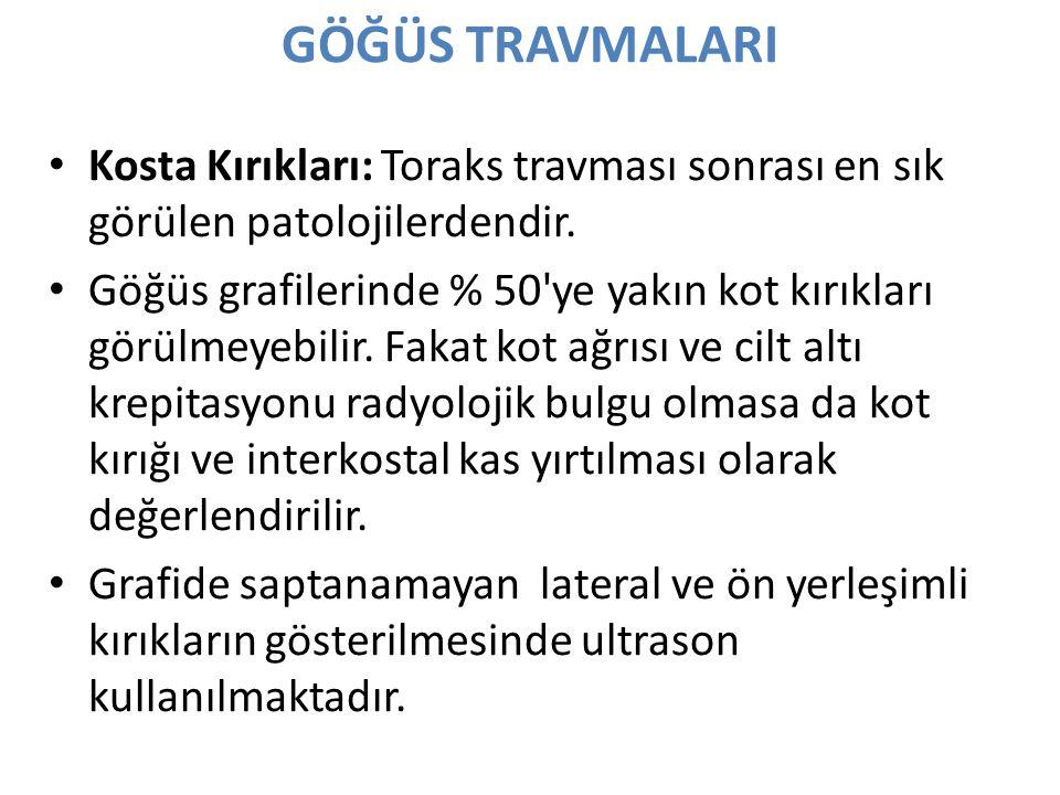 GÖĞÜS TRAVMALARI Kosta Kırıkları: Toraks travması sonrası en sık görülen patolojilerdendir.
