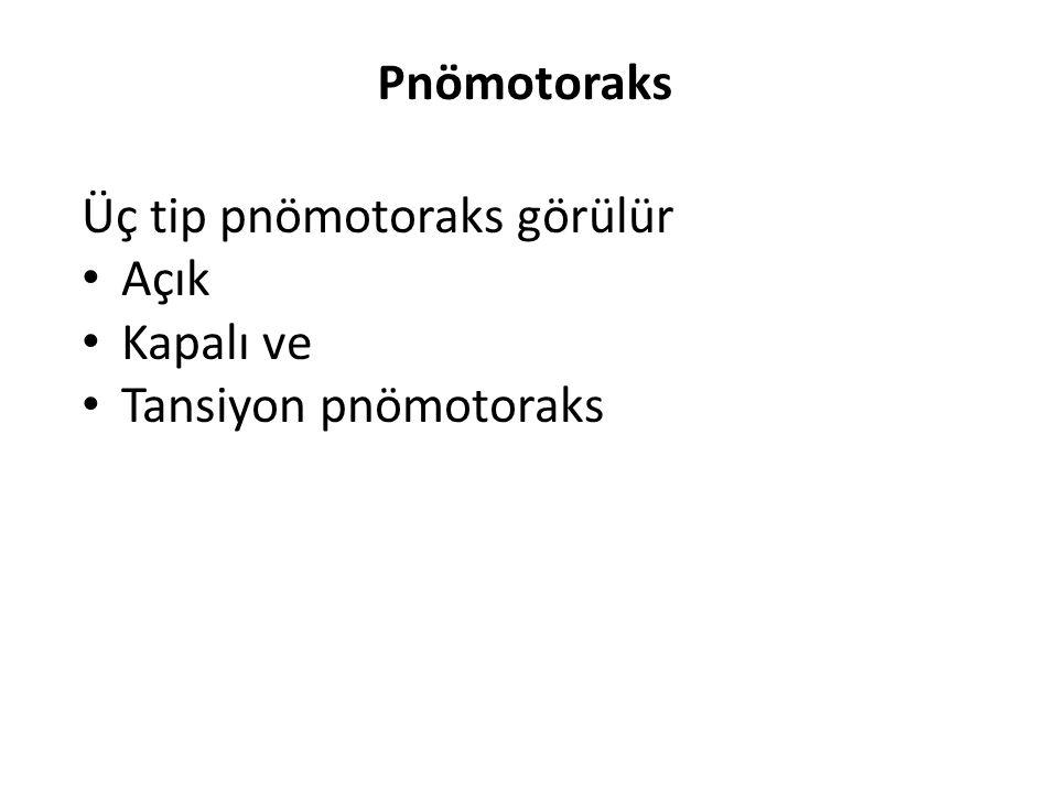 Pnömotoraks Üç tip pnömotoraks görülür Açık Kapalı ve Tansiyon pnömotoraks