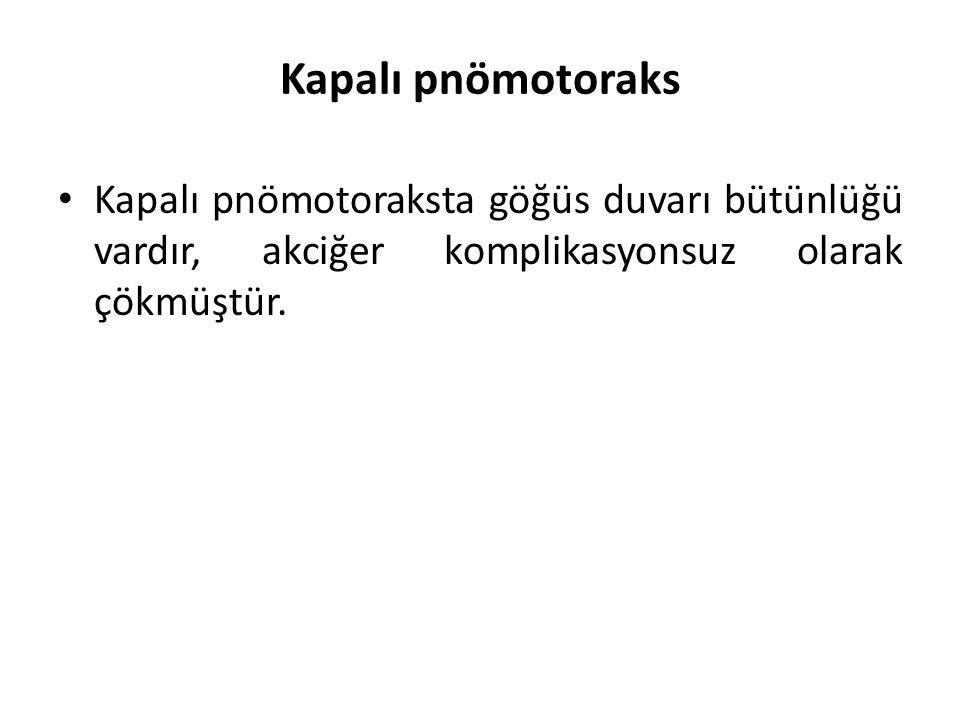Kapalı pnömotoraks Kapalı pnömotoraksta göğüs duvarı bütünlüğü vardır, akciğer komplikasyonsuz olarak çökmüştür.