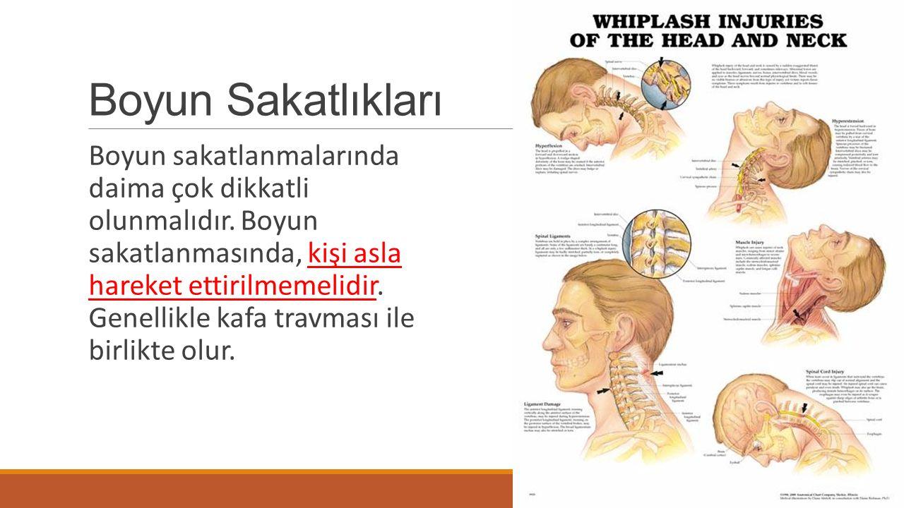 Boyun Sakatlıkları Boyun sakatlanmalarında daima çok dikkatli olunmalıdır. Boyun sakatlanmasında, kişi asla hareket ettirilmemelidir. Genellikle kafa