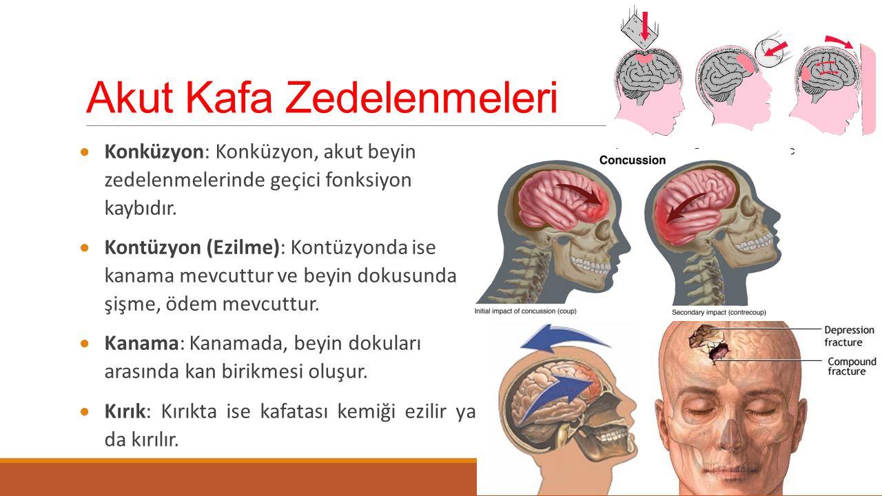 Akut Kafa Zedelenmeleri  Konküzyon: Konküzyon, akut beyin zedelenmelerinde geçici fonksiyon kaybıdır.  Kontüzyon (Ezilme): Kontüzyonda ise kanama me