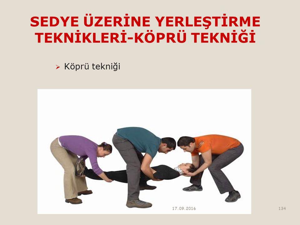 SEDYE ÜZERİNE YERLEŞTİRME TEKNİKLERİ-KÖPRÜ TEKNİĞİ  Köprü tekniği 17.09.2016134