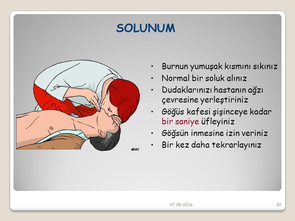 SOLUNUM Burnun yumuşak kısmını sıkınız Normal bir soluk alınız Dudaklarınızı hastanın ağzı çevresine yerleştiriniz Göğüs kafesi şişinceye kadar bir saniye üfleyiniz Göğsün inmesine izin veriniz Bir kez daha tekrarlayınız 17.09.201620