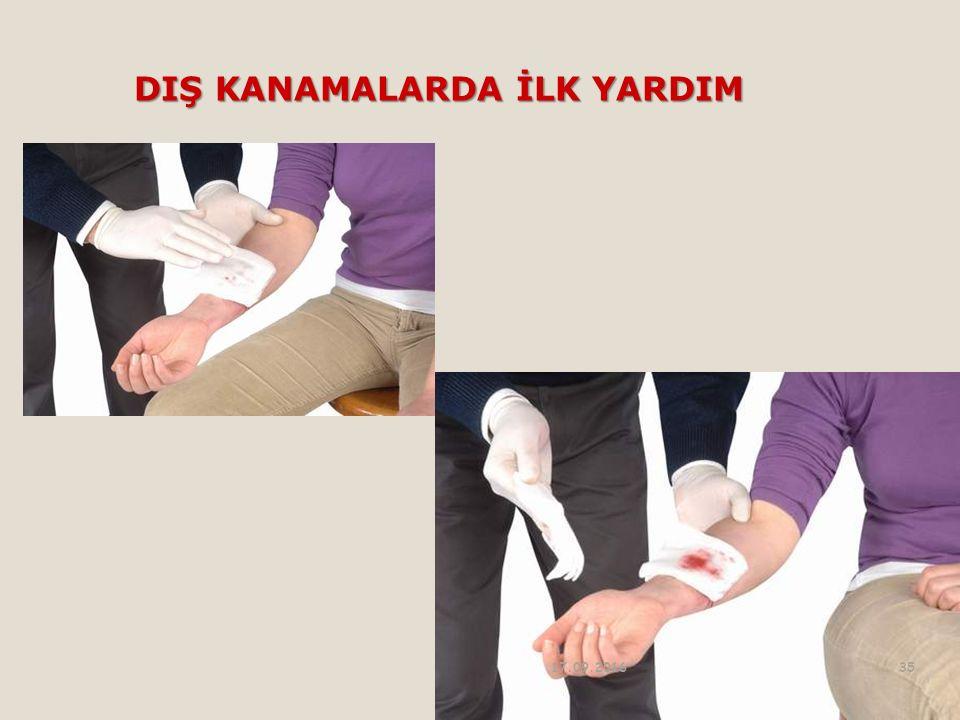 DIŞ KANAMALARDA İLK YARDIM 17.09.201635