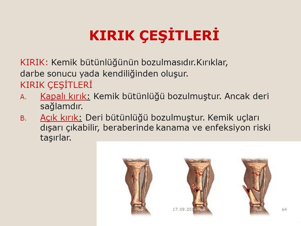 KIRIK ÇEŞİTLERİ KIRIK: Kemik bütünlüğünün bozulmasıdır.Kırıklar, darbe sonucu yada kendiliğinden oluşur. KIRIK ÇEŞİTLERİ A. Kapalı kırık: Kemik bütünl