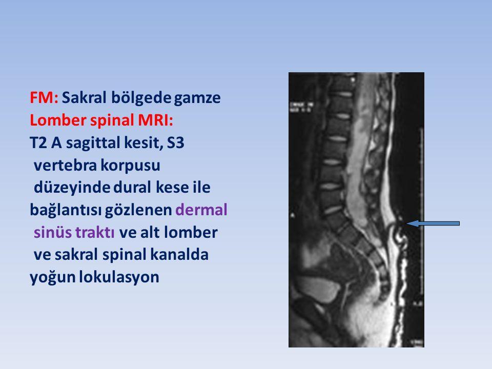 FM: Sakral bölgede gamze Lomber spinal MRI: T2 A sagittal kesit, S3 vertebra korpusu düzeyinde dural kese ile bağlantısı gözlenen dermal sinüs traktı ve alt lomber ve sakral spinal kanalda yoğun lokulasyon
