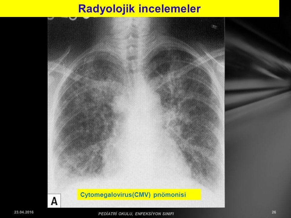 Cytomegalovirus(CMV) pnömonisi Radyolojik incelemeler 23.04.2016 PEDİATRİ OKULU, ENFEKSİYON SINIFI 26
