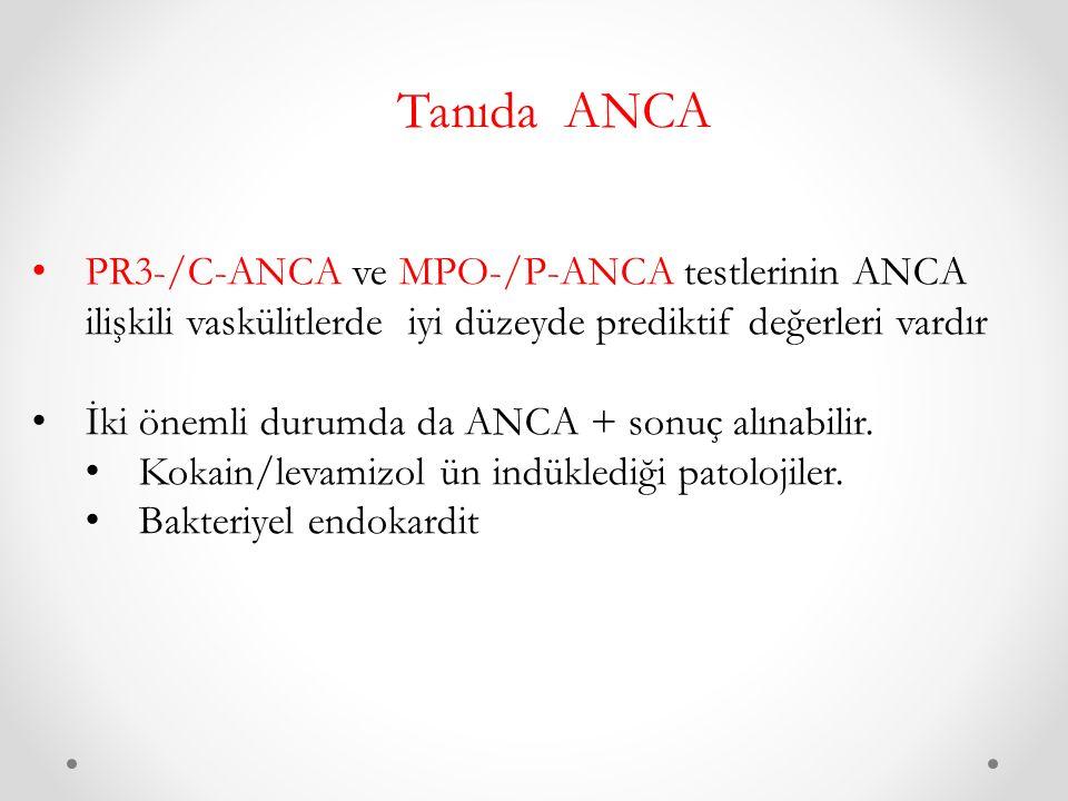 Tanıda ANCA PR3-/C-ANCA ve MPO-/P-ANCA testlerinin ANCA ilişkili vaskülitlerde iyi düzeyde prediktif değerleri vardır İki önemli durumda da ANCA + sonuç alınabilir.