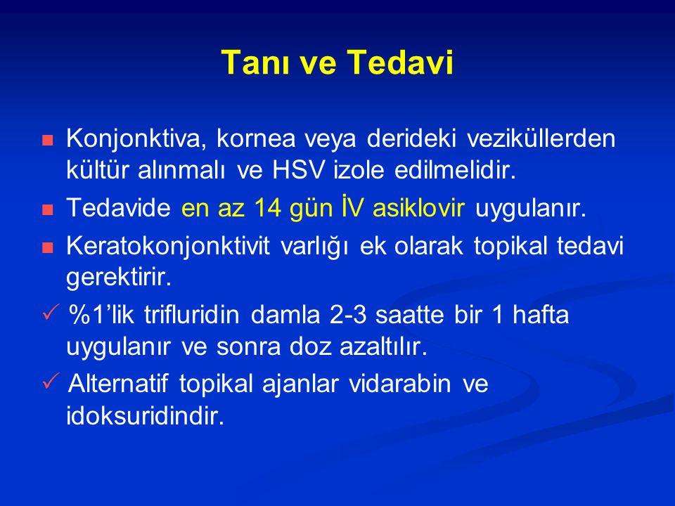 Tanı ve Tedavi Konjonktiva, kornea veya derideki veziküllerden kültür alınmalı ve HSV izole edilmelidir. Tedavide en az 14 gün İV asiklovir uygulanır.