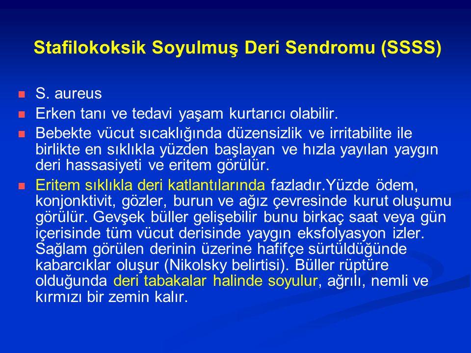 Stafilokoksik Soyulmuş Deri Sendromu (SSSS) S. aureus Erken tanı ve tedavi yaşam kurtarıcı olabilir. Bebekte vücut sıcaklığında düzensizlik ve irritab