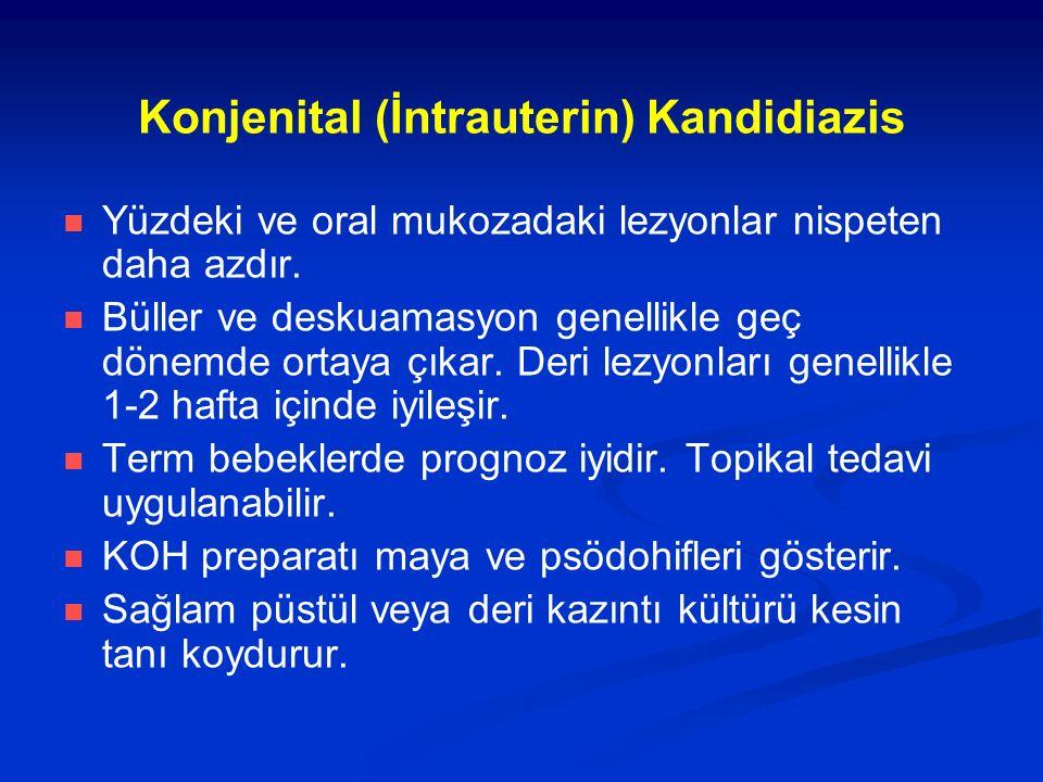 Konjenital (İntrauterin) Kandidiazis Yüzdeki ve oral mukozadaki lezyonlar nispeten daha azdır.