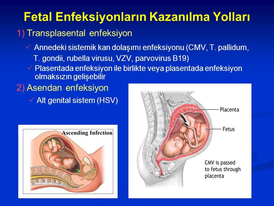 Fetal Enfeksiyonların Kazanılma Yolları 1) Transplasental enfeksiyon  Annedeki sistemik kan dolaşımı enfeksiyonu (CMV, T. pallidum, T. gondii, rubell