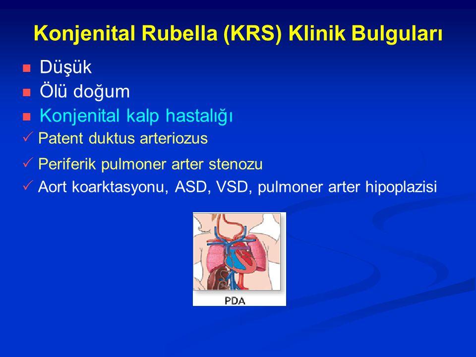Konjenital Rubella (KRS) Klinik Bulguları Düşük Ölü doğum Konjenital kalp hastalığı  Patent duktus arteriozus  Periferik pulmoner arter stenozu  Aort koarktasyonu, ASD, VSD, pulmoner arter hipoplazisi