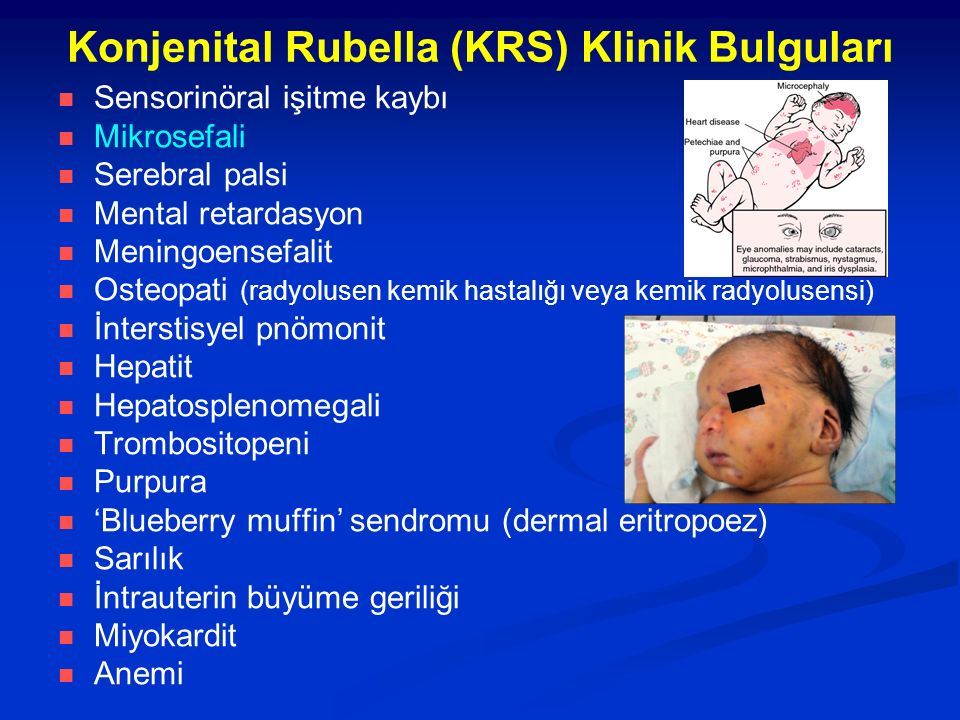 Konjenital Rubella (KRS) Klinik Bulguları Sensorinöral işitme kaybı Mikrosefali Serebral palsi Mental retardasyon Meningoensefalit Osteopati (radyolusen kemik hastalığı veya kemik radyolusensi) İnterstisyel pnömonit Hepatit Hepatosplenomegali Trombositopeni Purpura 'Blueberry muffin' sendromu (dermal eritropoez) Sarılık İntrauterin büyüme geriliği Miyokardit Anemi