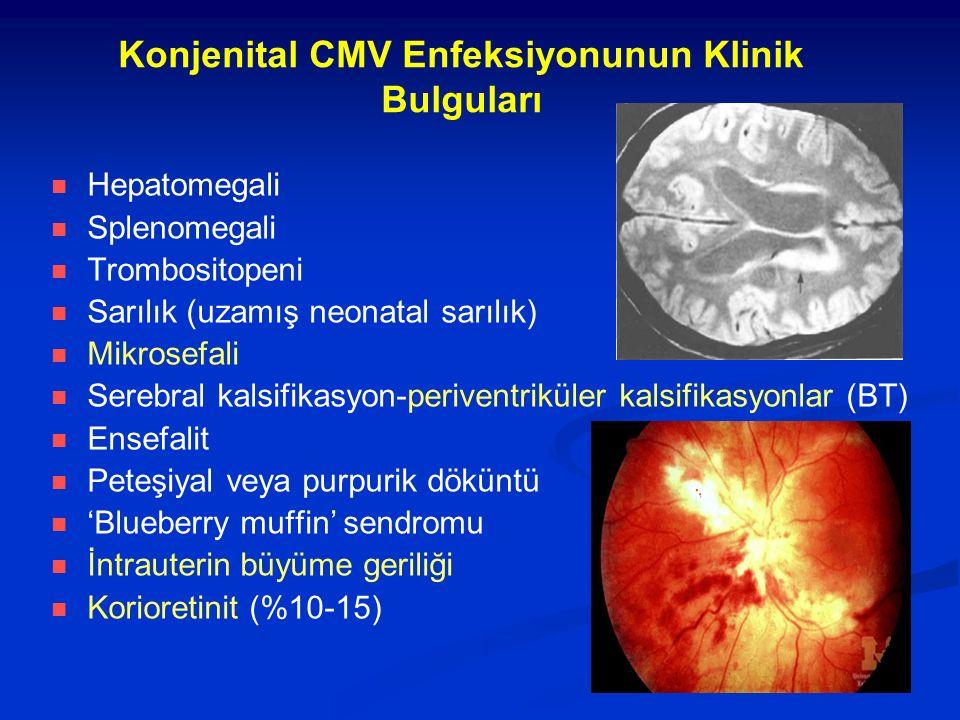 Konjenital CMV Enfeksiyonunun Klinik Bulguları Hepatomegali Splenomegali Trombositopeni Sarılık (uzamış neonatal sarılık) Mikrosefali Serebral kalsifikasyon-periventriküler kalsifikasyonlar (BT) Ensefalit Peteşiyal veya purpurik döküntü 'Blueberry muffin' sendromu İntrauterin büyüme geriliği Korioretinit (%10-15)