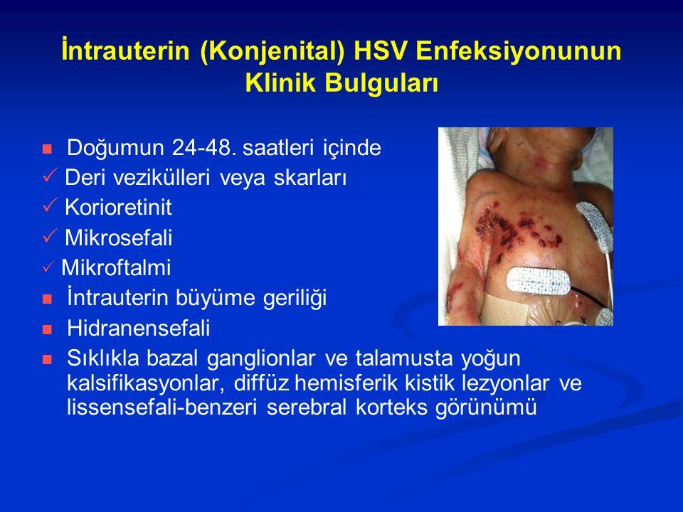 İntrauterin (Konjenital) HSV Enfeksiyonunun Klinik Bulguları Doğumun 24-48. saatleri içinde  Deri vezikülleri veya skarları  Korioretinit  Mikrosef