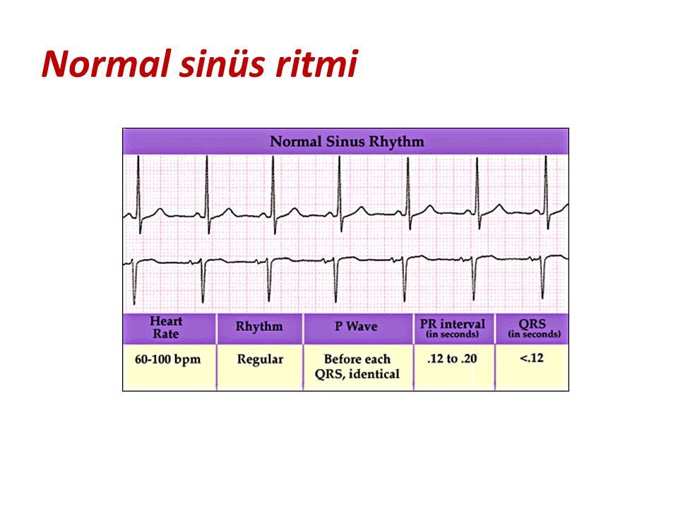 Normal sinüs ritmi