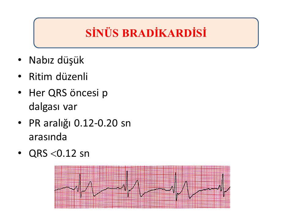 Nabız düşük Ritim düzenli Her QRS öncesi p dalgası var PR aralığı 0.12-0.20 sn arasında QRS  0.12 sn SİNÜS BRADİKARDİSİ