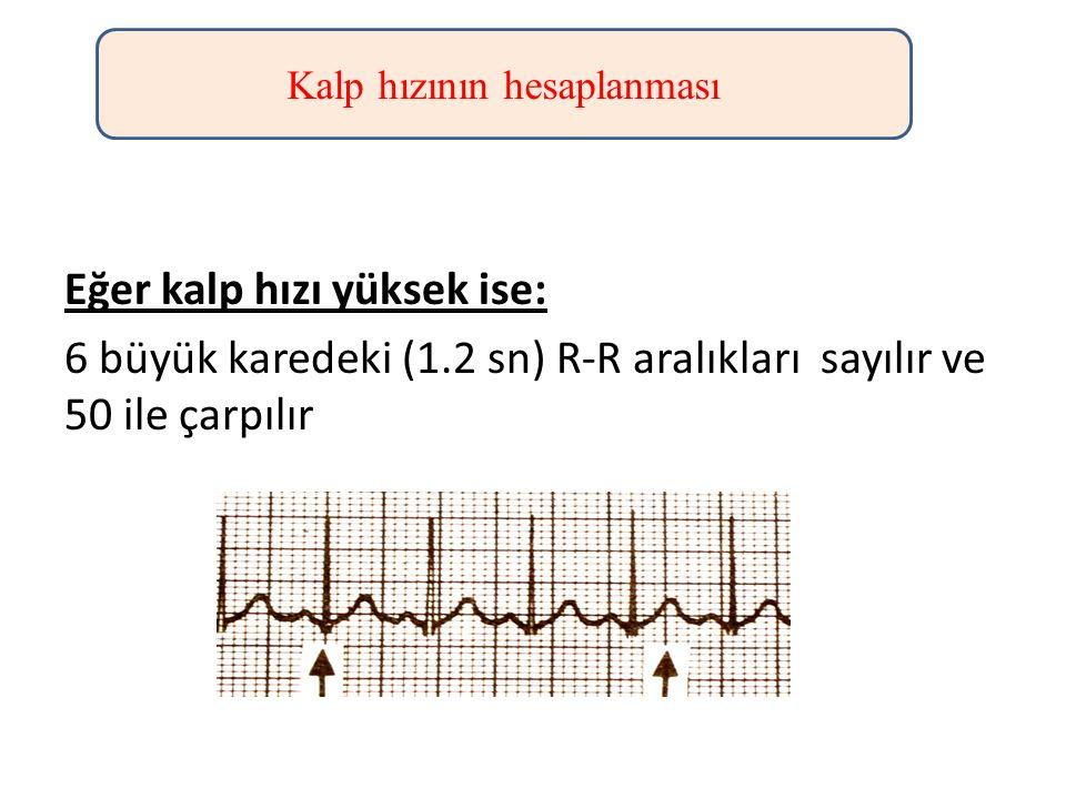 Eğer kalp hızı yüksek ise: 6 büyük karedeki (1.2 sn) R-R aralıkları sayılır ve 50 ile çarpılır Kalp hızının hesaplanması