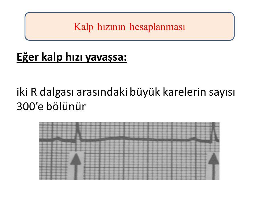Eğer kalp hızı yavaşsa: iki R dalgası arasındaki büyük karelerin sayısı 300'e bölünür Kalp hızının hesaplanması