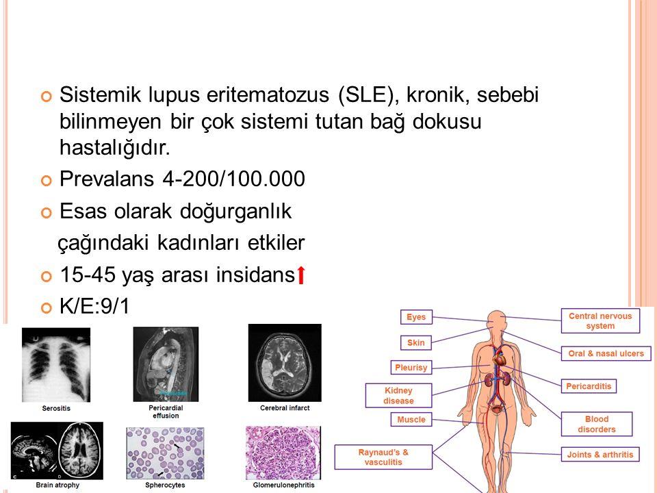 Sistemik lupus eritematozus (SLE), kronik, sebebi bilinmeyen bir çok sistemi tutan bağ dokusu hastalığıdır. Prevalans 4-200/100.000 Esas olarak doğurg