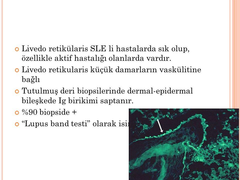 Livedo retikülaris SLE li hastalarda sık olup, özellikle aktif hastalığı olanlarda vardır. Livedo retikularis küçük damarların vaskülitine bağlı Tutul