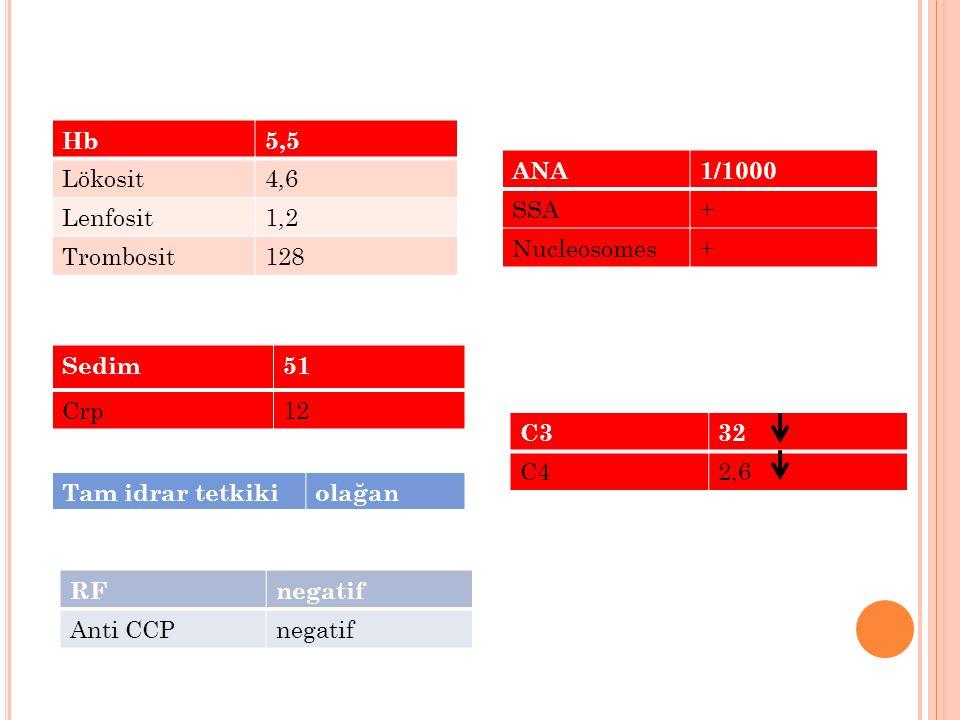 RFnegatif Anti CCPnegatif Hb5,5 Lökosit4,6 Lenfosit1,2 Trombosit128 Sedim51 Crp12 ANA1/1000 SSA+ Nucleosomes+ C332 C42,6 Tam idrar tetkikiolağan