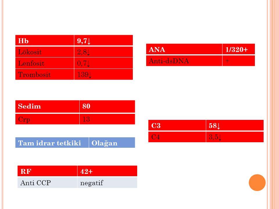 RF42+ Anti CCPnegatif Hb9,7↓ Lökosit2,8↓ Lenfosit0,7↓ Trombosit139↓ Sedim80 Crp13 ANA1/320+ Anti-dsDNA+ C358↓ C43,5↓ Tam idrar tetkikiOlağan