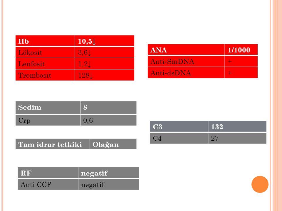 RFnegatif Anti CCPnegatif Hb10,5↓ Lökosit3,6↓ Lenfosit1,2↓ Trombosit128↓ Sedim8 Crp0,6 ANA1/1000 Anti-SmDNA+ Anti-dsDNA+ C3132 C427 Tam idrar tetkikiO