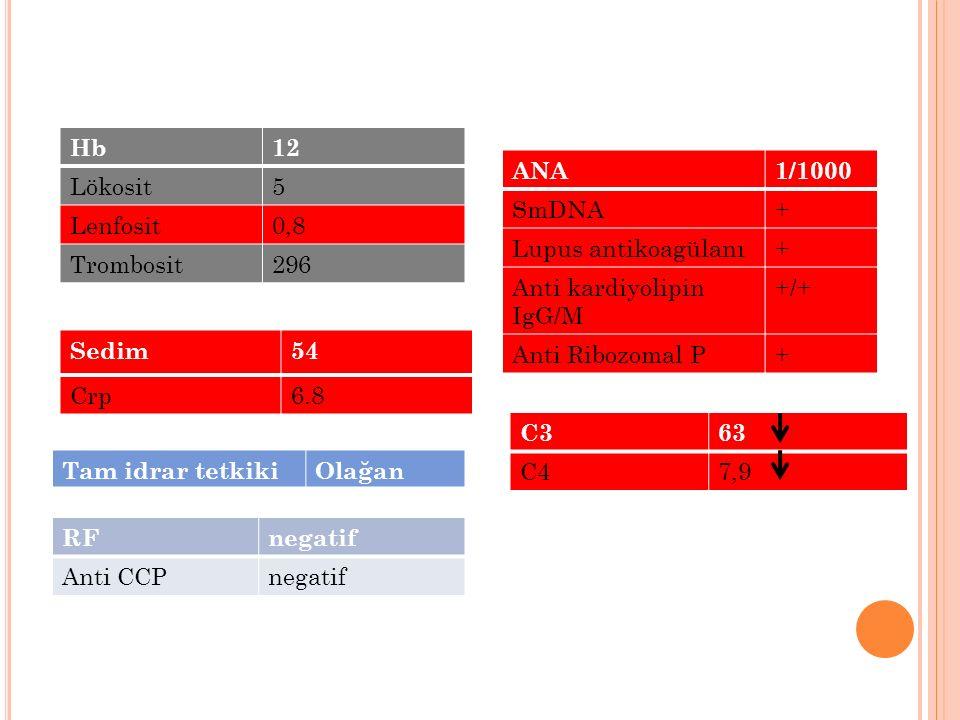 RFnegatif Anti CCPnegatif Hb12 Lökosit5 Lenfosit0,8 Trombosit296 Sedim54 Crp6.8 ANA1/1000 SmDNA+ Lupus antikoagülanı+ Anti kardiyolipin IgG/M +/+ Anti
