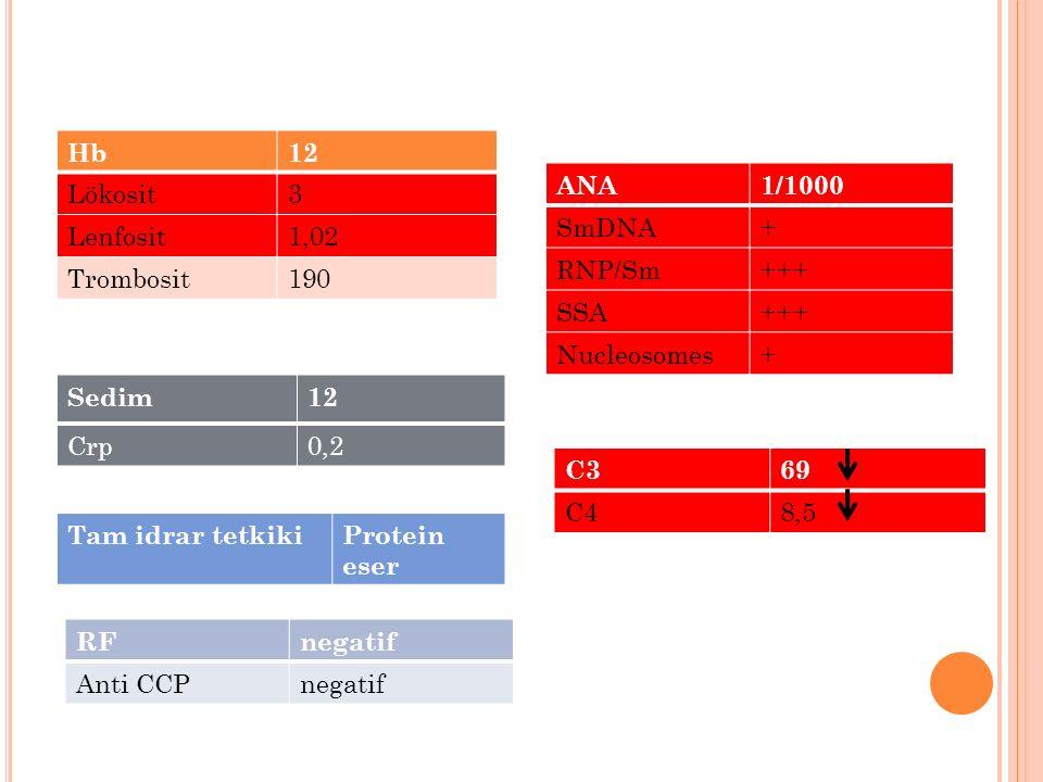 RFnegatif Anti CCPnegatif Hb12 Lökosit3 Lenfosit1,02 Trombosit190 Sedim12 Crp0,2 ANA1/1000 SmDNA+ RNP/Sm+++ SSA+++ Nucleosomes+ C369 C48,5 Tam idrar t