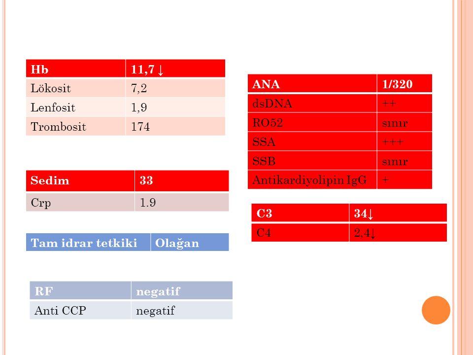 Hb11,7 ↓ Lökosit7,2 Lenfosit1,9 Trombosit174 Sedim33 Crp1.9 Tam idrar tetkikiOlağan RFnegatif Anti CCPnegatif ANA1/320 dsDNA++ RO52sınır SSA+++ SSBsın