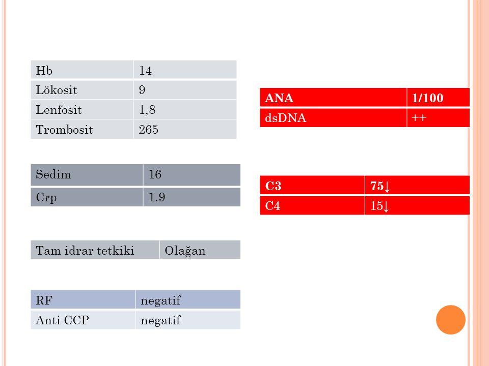 Hb14 Lökosit9 Lenfosit1,8 Trombosit265 Sedim16 Crp1.9 Tam idrar tetkikiOlağan ANA1/100 dsDNA++ C375↓ C415↓ RFnegatif Anti CCPnegatif