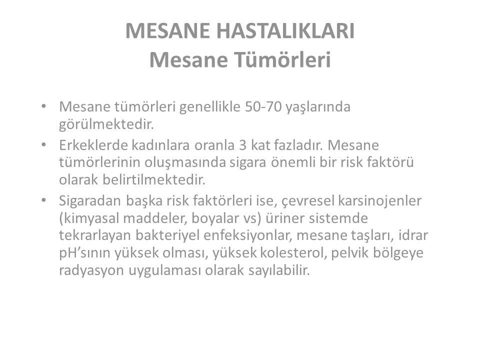 MESANE HASTALIKLARI Mesane Tümörleri Mesane tümörleri genellikle 50-70 yaşlarında görülmektedir.