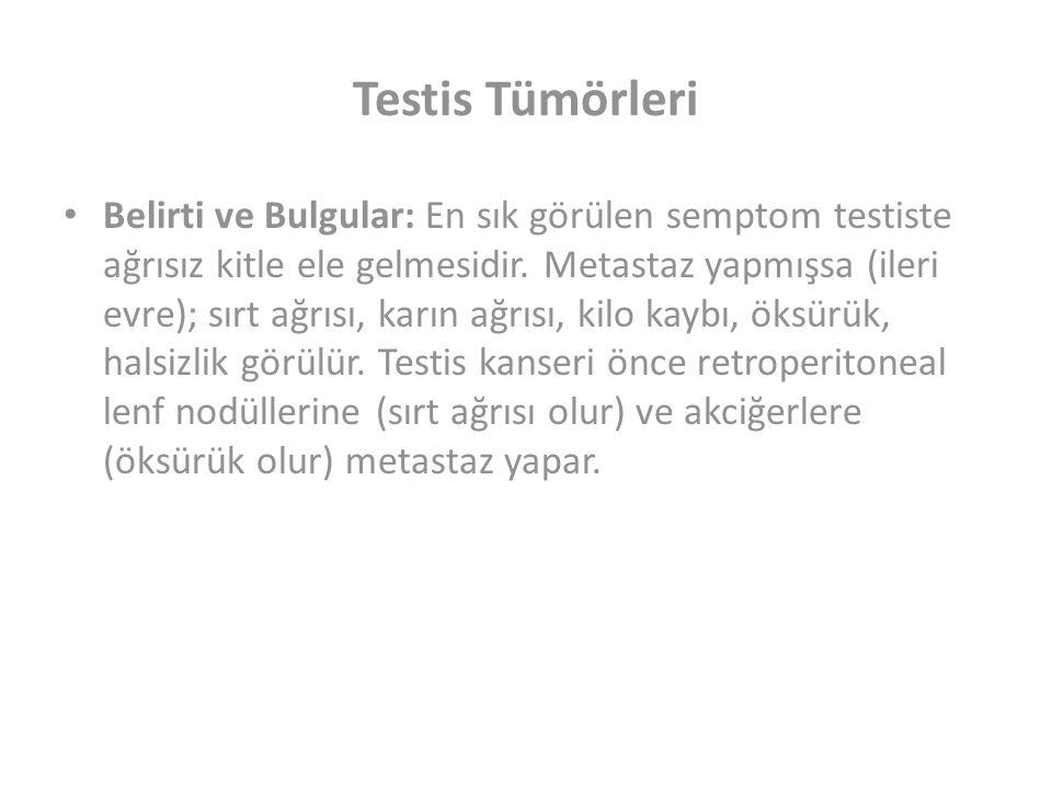 Testis Tümörleri Belirti ve Bulgular: En sık görülen semptom testiste ağrısız kitle ele gelmesidir.