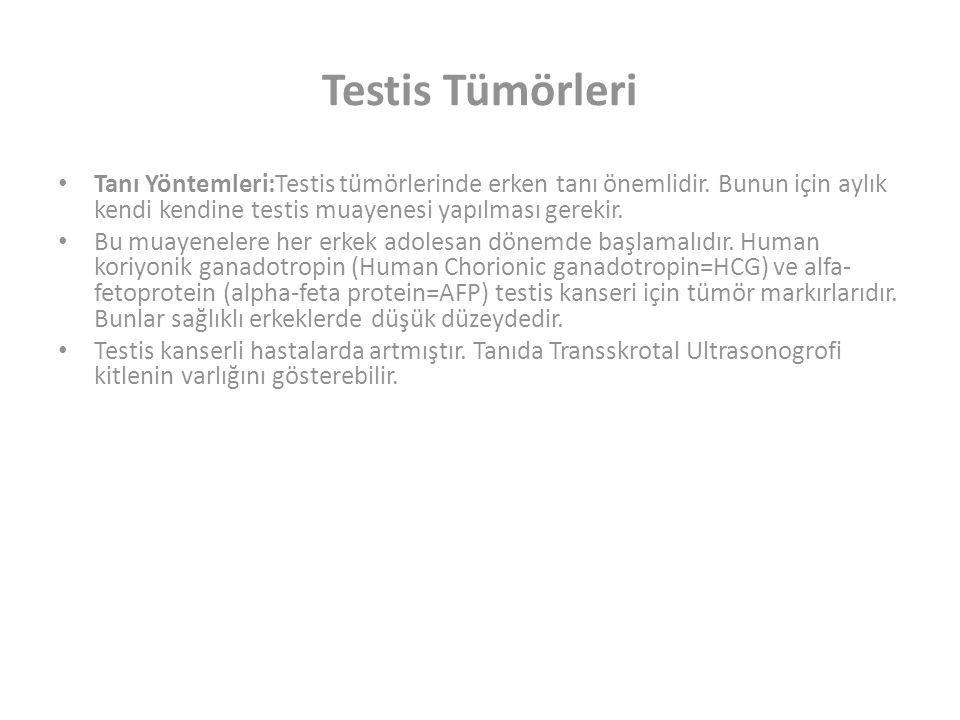 Testis Tümörleri Tanı Yöntemleri:Testis tümörlerinde erken tanı önemlidir.