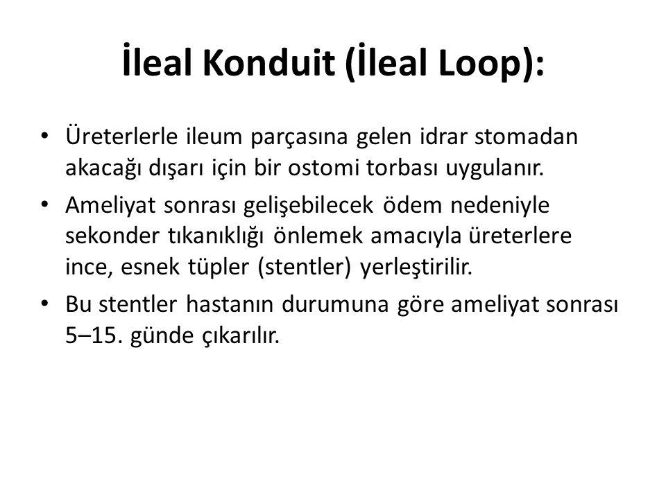 İleal Konduit (İleal Loop): Üreterlerle ileum parçasına gelen idrar stomadan akacağı dışarı için bir ostomi torbası uygulanır.
